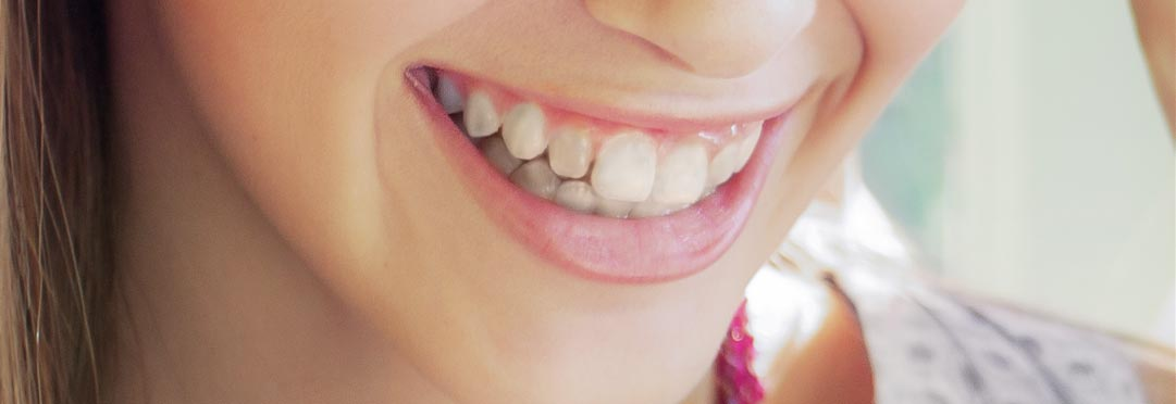 home_dentist2_beforeafter1a