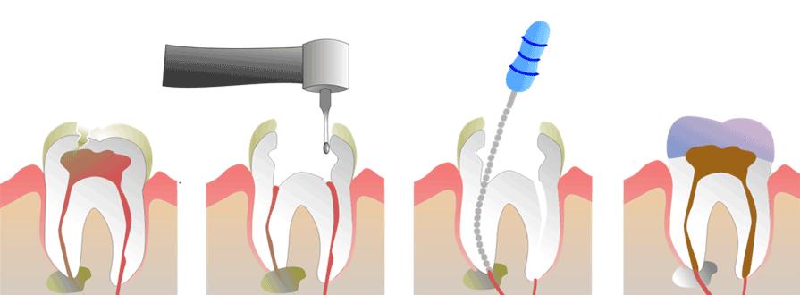 endodontie_procedure