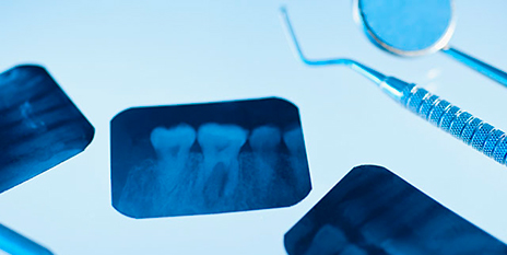 gty_dental_xray_ll_120410_wmain