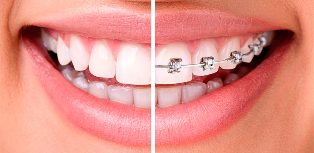 ortodontiebkg