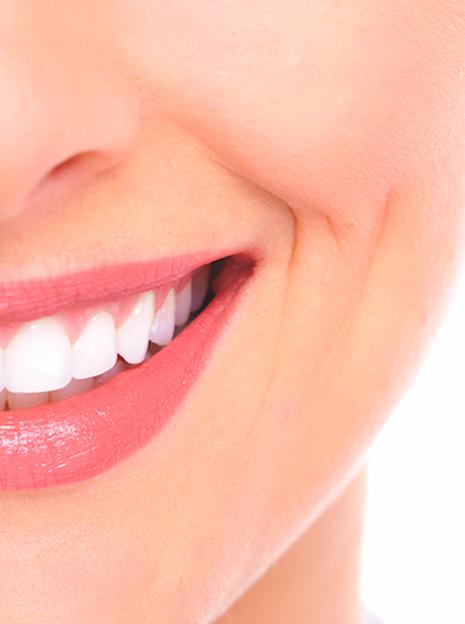 tratamientos-estetica-dental